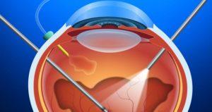 Como funciona a cirurgia de implante do óleo de silicone?
