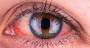 Doença que afeta os vasos sanguíneos do olho: fotocoagulação de retina