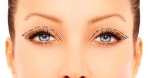 Cuidados com a pele dos olhos pós-blefaroplastia