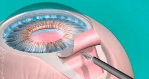 Trabeculectomia: o que é, tratamentos e riscos