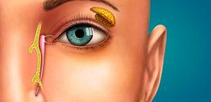 Como é feita a cirurgia de via lacrimal