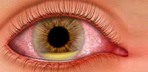 Endoftalmite: o que é, causas, sintomas e tratamento