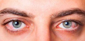Conjuntivite: o que é, sintomas, causas e tratamento