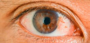 Pterígio: A doença que pode causar sérios danos a visão