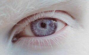 Entenda o que é Albinismo Ocular