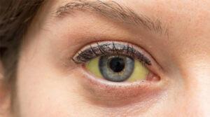 O que fazer quando meus olhos estão amarelados?
