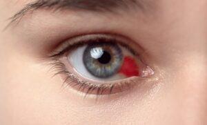 Como são os Derrames Oculares?